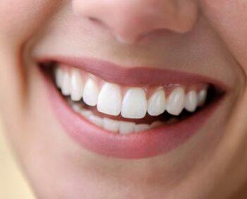 dentes-brancos-sorriso-bonito-1599583111401_v2_450x337