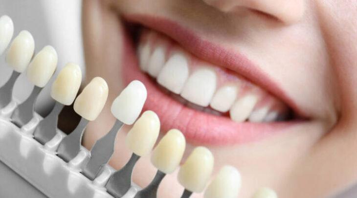 faceta-ou-lente-de-contato-dental-746x413