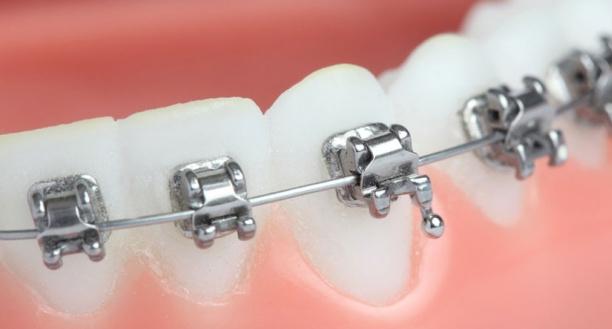 Aparelho-autoligado-ortodontia