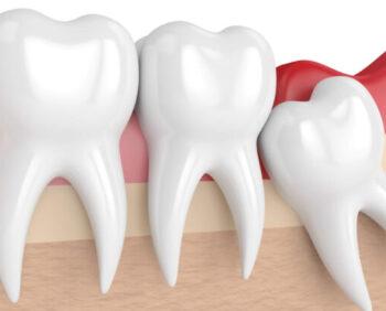 282485-duvidas-sobre-o-dente-do-siso-solucionamos-as-x-principais-perguntas-746x413