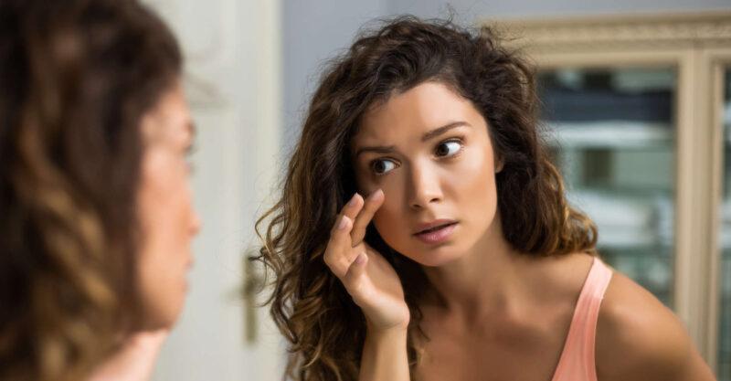 botox para olheiras: resolve ou não resolve? Descubra!